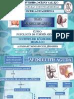APENDICITIS AGUDA (Jénniffer)