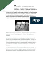Hipersementosis y Esclerosis Pulpar