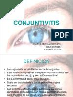 conjuntivitisppt1