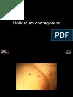 Molluscum_contagiosum