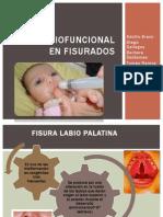 Terapia Miofuncional en Fisurados