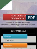 Tabes Dorsalis