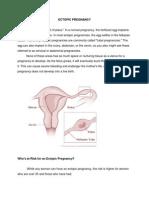 ECTOPIC PREGNANCY.docx