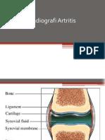 arthritis rheumatoid,osteoarthritis,arthritis gout