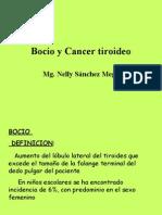 Bocio Cancer
