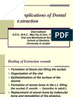 Complications of Dental Extraction