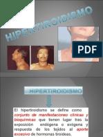 HIPER.TIROIDISMO