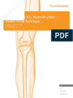 Anatomic Acl Tech Guide