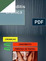 Tiroiditis crónica