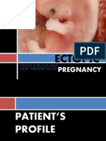 ECTOPIC PREGNANCY edited by ainiesam27