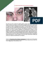 A primera vista 392 (Lesiones oculares destructivas en la Granulomatosis de Wegener).docx