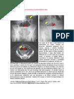 A primera vista 415 (Absceso mesentérico en enfermedad de Crohn).docx