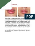 A primera vista 416 (Chancro sifilítico en labios).docx