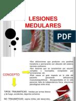 LESIONES MEDULARES.pptx