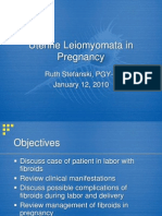Fibroids in Pregnancy
