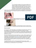 A Peritonsillar Abscess