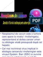 Cancer Cavum Prezentare