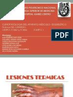 Lesiones Térmicas