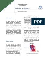 Atresia Tricuspide Imprimir