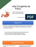 Hipertrofia Congénita de Píloro