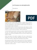 03/01/14 newsoax Prevenible cáncer de mama con autoexploración