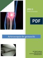 Artroscopia de Genunchi