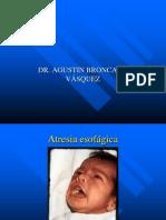 ATRESIA ESOFÁGICA Y ENF HIRSCHPRUNG