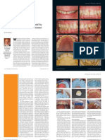 Treating Worn Dentition