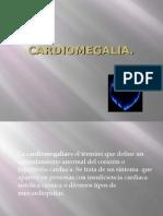 Cardiomegalia