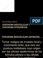 Carcinoma Basocelular y Carcinoma Epidermoide
