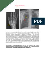 A primera vista 427 (Dolor de pulgar y afección pulmonar).docx