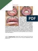 A primera vista 429 (Pioestomatitis vegetante).docx