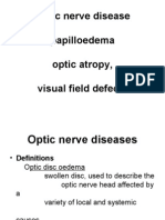Optic Nerve Disease,Papillaedema Optic Atropy, Visual Field