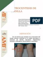 Artrocentesis