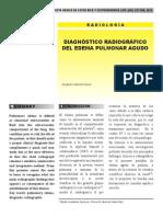 Diagnóstico radiográfico del edema pulmonar agudo