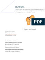 Fractura de Col Femural1