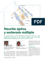 Neuritis Optica y Esclerosis Mltiple