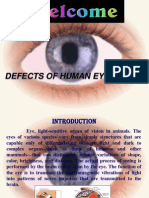 Defects in Human Eye