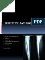 Ekspertise Radiologi Fraktur Dian Bismillah