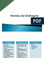 Hernias Del Diafragma