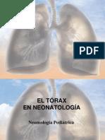 Torax Del Neonato