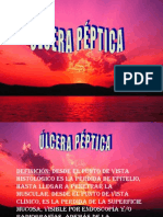 ULCERA PÉPTICAAA