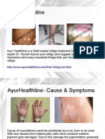 AyurHealthline Vitiligo Cure Experts‎