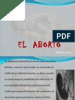 Diapositivas Sobre El Aborto Rocio Finales