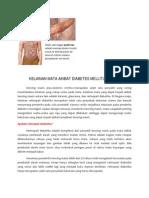 Kelainan Mata Akibat Diabetes Mellitus