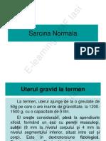 Sarcina Normala Mircea Onofriescu E