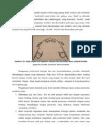 Teknik Pembuatan Dan Pemasangan Band Pada Perawatan Ortodonti
