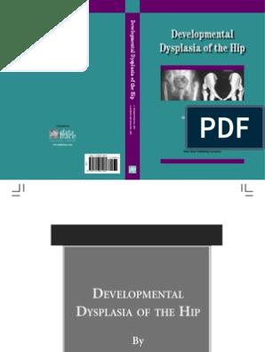 Developmental Dysplasia of the Hip | Hip | Pelvis