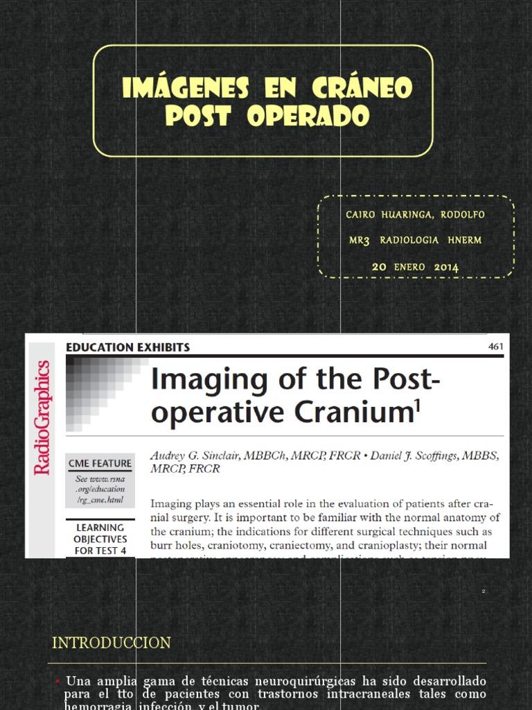 Expo Craneo Post Op Original