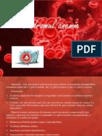 Sindromul Anemic 2003